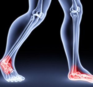 Ankle/foot conditions treated with stem cells