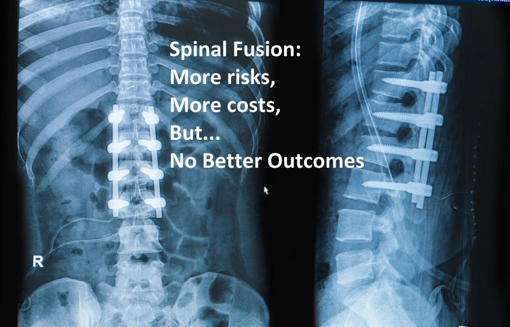 Spinal Fusions Necessary Treatment Regenerative